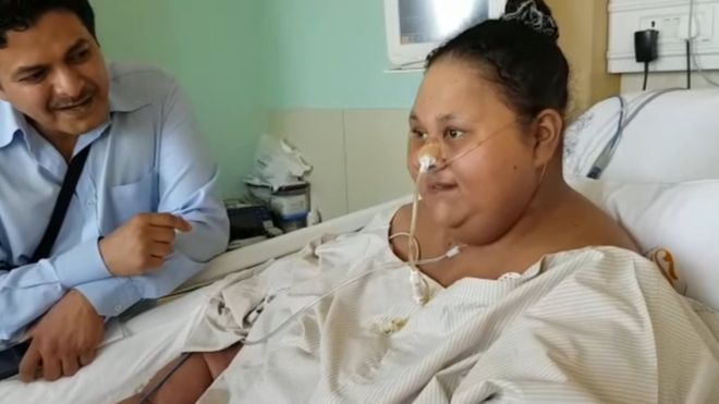 Egypt '500kg woman' loses half her weight after India surgery