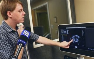 American linguist revealed the features of the Kazakh language with the help of an ultrasound.